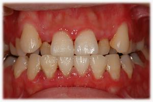 歯周病・・・軽度