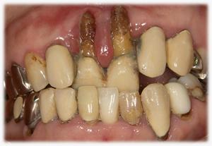 歯周病・・・重度・末期