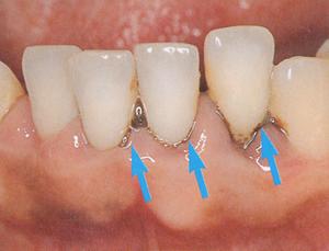 歯肉縁下歯石